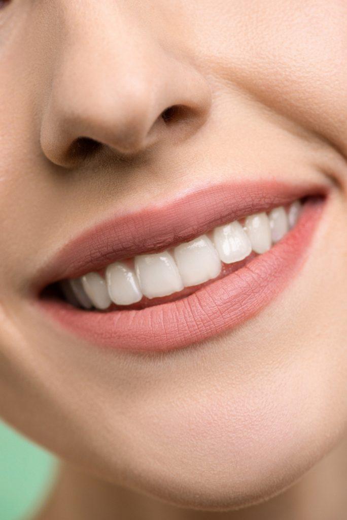 Loša higijena zuba može izazvati razne bolesti; Foto pexels.com